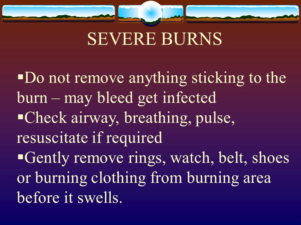 SEVERE BURNS Do not remove anything sticking to the burn – may bleed get infected Check airway, breathing, pulse, resuscitate if required Gently remov