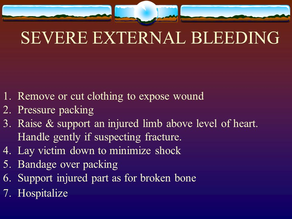 SEVERE EXTERNAL BLEEDING 1.Remove or cut clothing to expose wound 2.Pressure packing 3.Raise & support an injured limb above level of heart. Handle ge