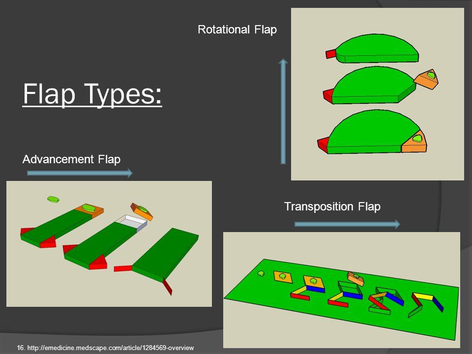 Flap Types: Advancement Flap Rotational Flap Transposition Flap 16. http://emedicine.medscape.com/article/1284569-overview