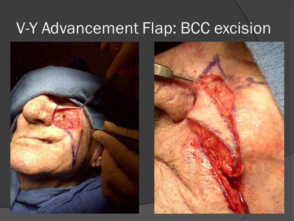 V-Y Advancement Flap: BCC excision