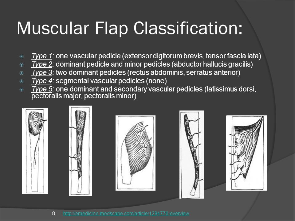 Muscular Flap Classification: Type 1: one vascular pedicle (extensor digitorum brevis, tensor fascia lata) Type 2: dominant pedicle and minor pedicles
