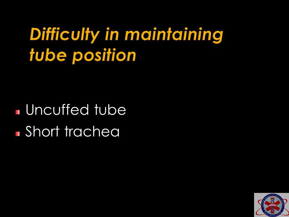 Uncuffed tube Short trachea