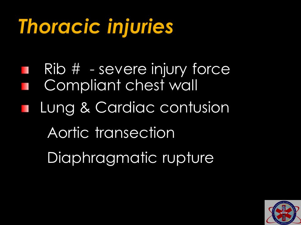 Rib # - severe injury force Compliant chest wall Lung & Cardiac contusion Aortic transection Diaphragmatic rupture