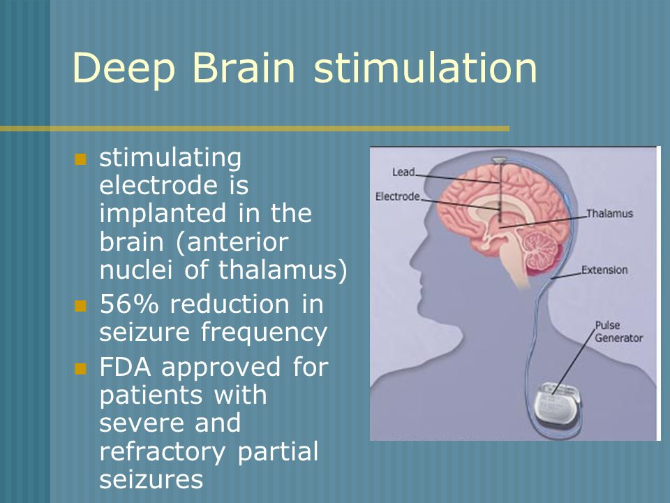Deep Brain stimulation stimulating electrode is implanted in the brain (anterior nuclei of thalamus) 56% reduction in seizure frequency FDA approved f