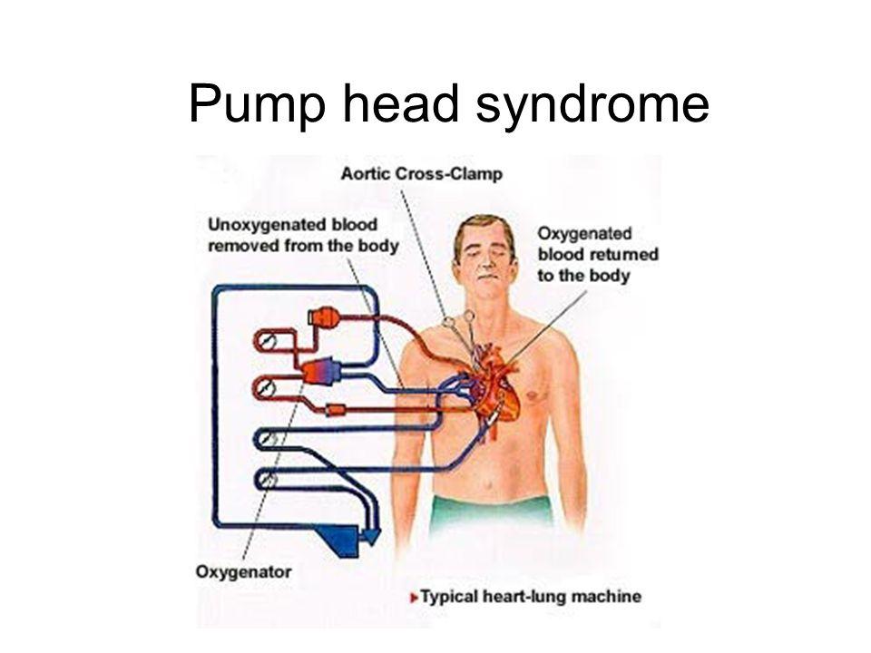 Pump head syndrome
