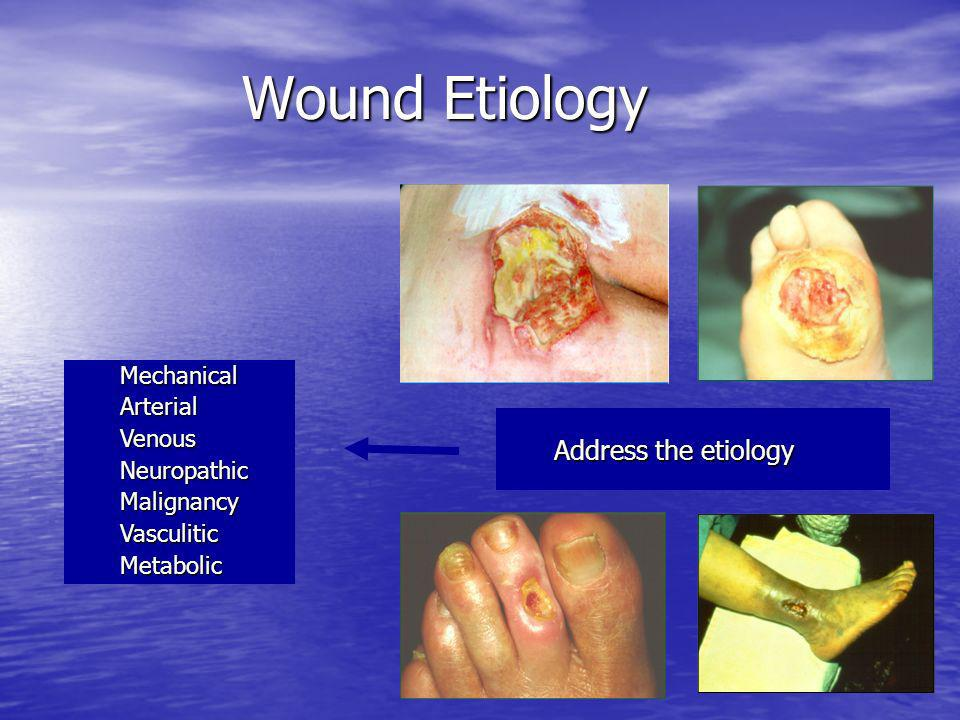 Wound Etiology Mechanical Arterial Venous Neuropathic Malignancy Vasculitic Metabolic Address the etiology Address the etiology