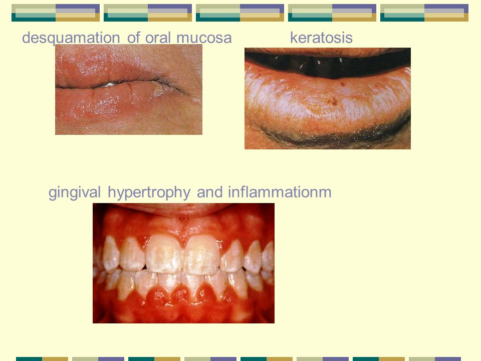 desquamation of oral mucosa keratosis gingival hypertrophy and inflammationm