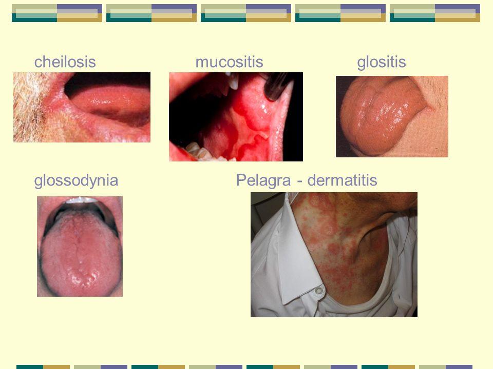 cheilosis mucositis glositis glossodynia Pelagra - dermatitis