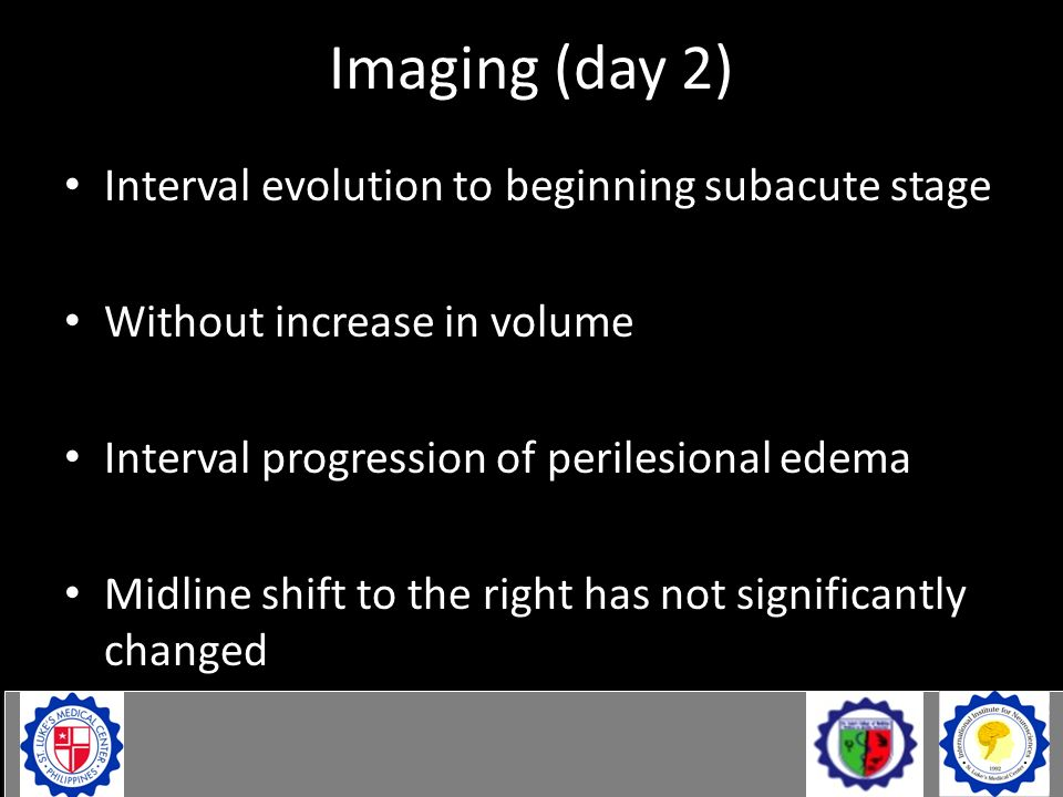 Interval evolution to beginning subacute stage Without increase in volume Interval progression of perilesional edema Midline shift to the right has no