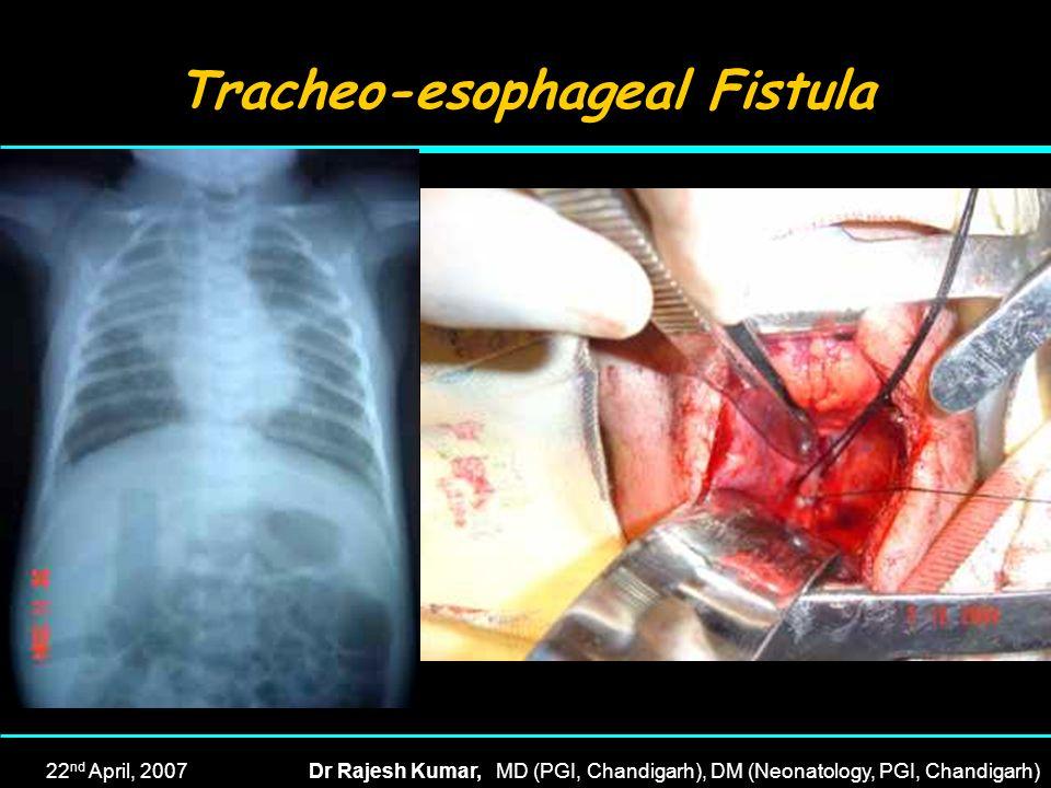 22 nd April, 2007Dr Rajesh Kumar, MD (PGI, Chandigarh), DM (Neonatology, PGI, Chandigarh) Tracheo-esophageal Fistula