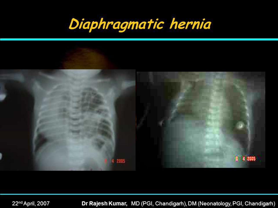 22 nd April, 2007Dr Rajesh Kumar, MD (PGI, Chandigarh), DM (Neonatology, PGI, Chandigarh) Diaphragmatic hernia