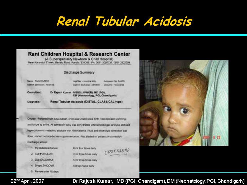 22 nd April, 2007Dr Rajesh Kumar, MD (PGI, Chandigarh), DM (Neonatology, PGI, Chandigarh) Renal Tubular Acidosis