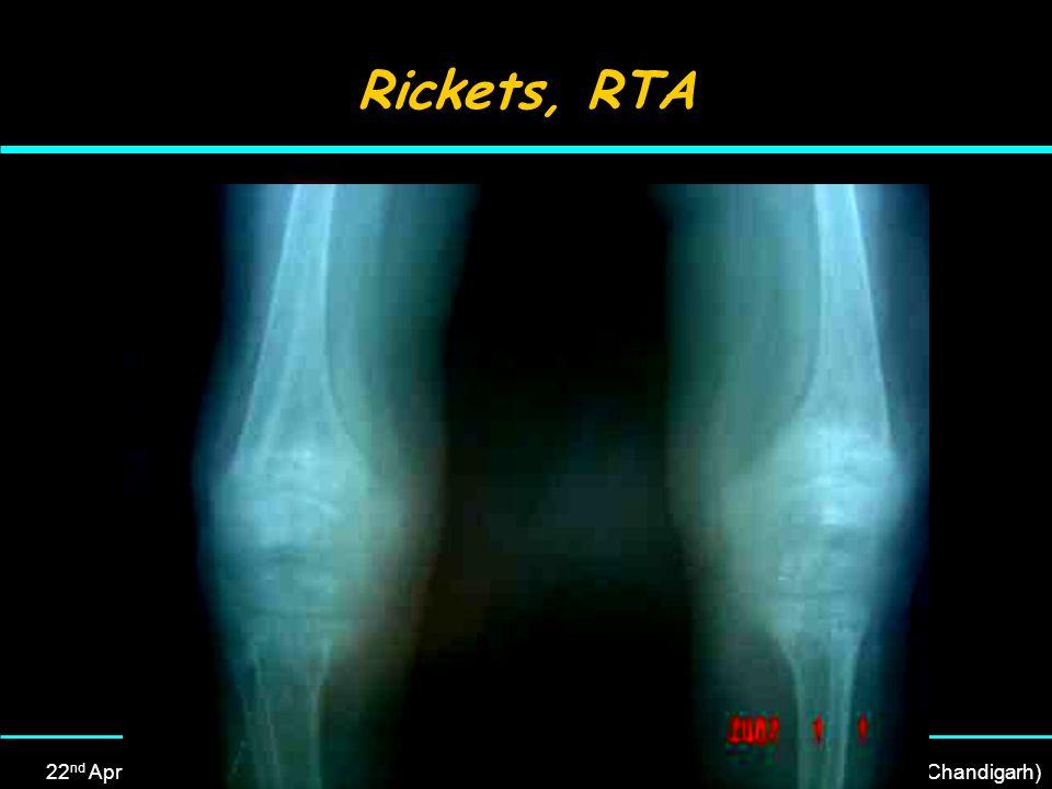 22 nd April, 2007Dr Rajesh Kumar, MD (PGI, Chandigarh), DM (Neonatology, PGI, Chandigarh) Rickets, RTA