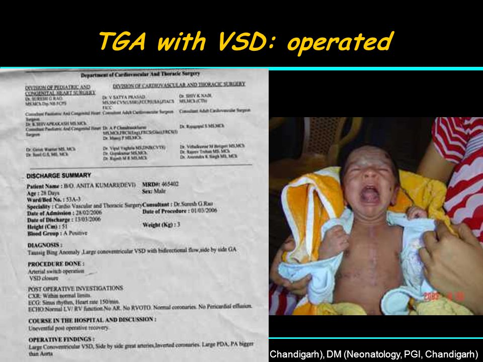 22 nd April, 2007Dr Rajesh Kumar, MD (PGI, Chandigarh), DM (Neonatology, PGI, Chandigarh) TGA 2 Kg baby was admitted on day 12 with phenobarbitone overdose Found to have mild cyanosis ECHO: TGA with VSD Operated: had complicated post op period Remained in NICU for 1 month
