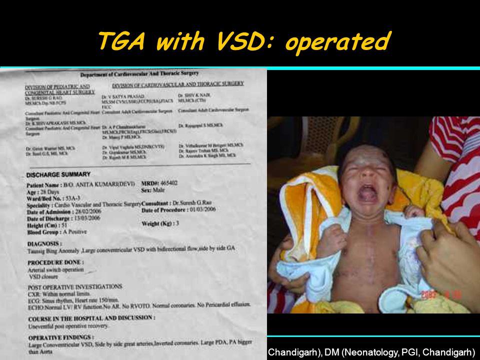 22 nd April, 2007Dr Rajesh Kumar, MD (PGI, Chandigarh), DM (Neonatology, PGI, Chandigarh) TGA with VSD: operated