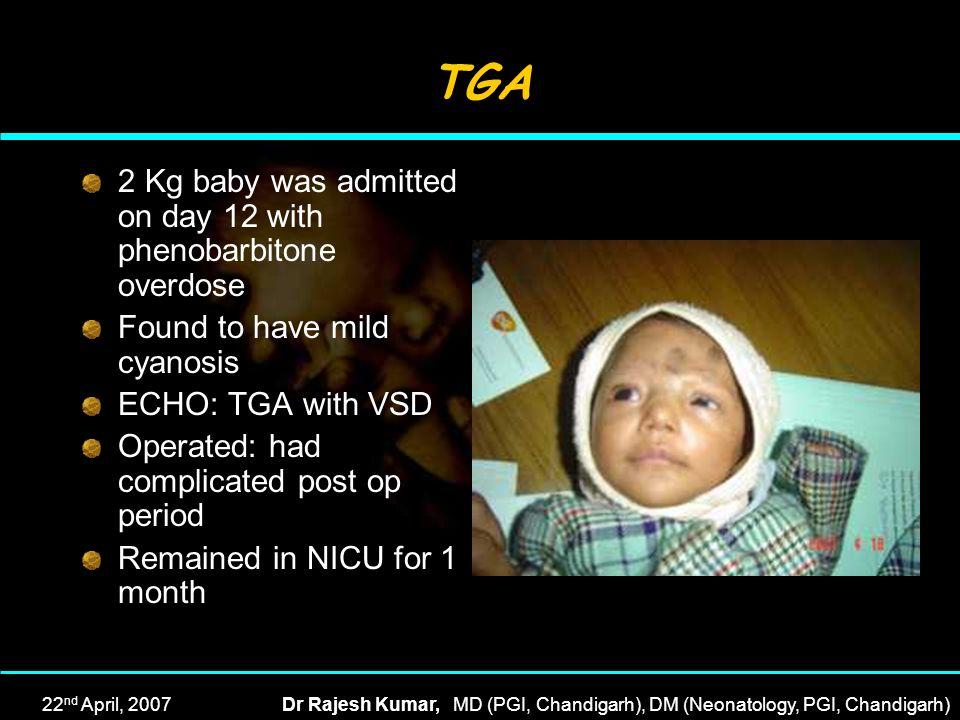 22 nd April, 2007Dr Rajesh Kumar, MD (PGI, Chandigarh), DM (Neonatology, PGI, Chandigarh) TGA 2 Kg baby was admitted on day 12 with phenobarbitone ove