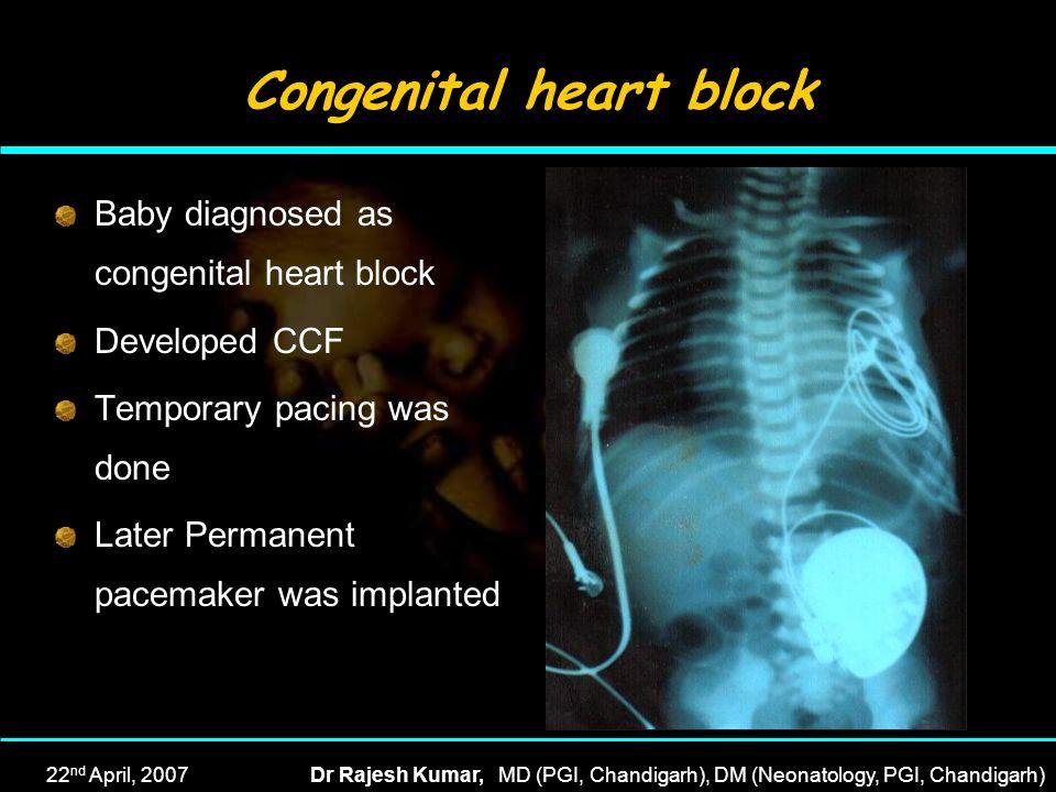 22 nd April, 2007Dr Rajesh Kumar, MD (PGI, Chandigarh), DM (Neonatology, PGI, Chandigarh) Congenital heart block Baby diagnosed as congenital heart bl