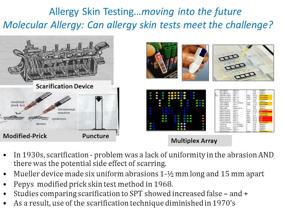 Allergy Skin Testing…moving into the future Molecular Allergy: Can allergy skin tests meet the challenge? In 1930s, scarification - problem was a lack