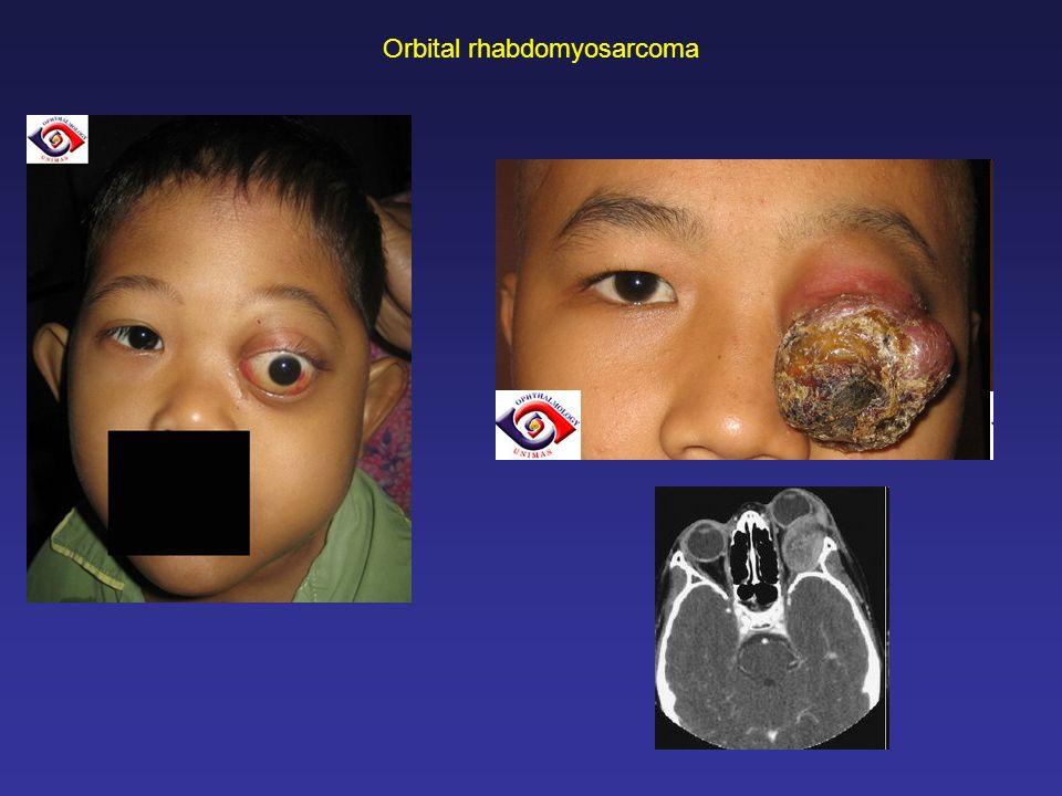 Orbital rhabdomyosarcoma