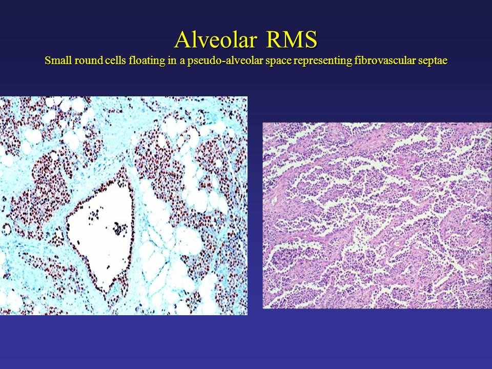 Alveolar RMS Small round cells floating in a pseudo-alveolar space representing fibrovascular septae