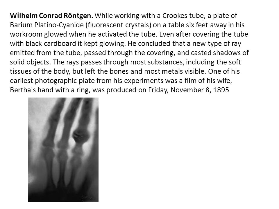 Wilhelm Conrad Röntgen. While working with a Crookes tube, a plate of Barium Platino-Cyanide (fluorescent crystals) on a table six feet away in his wo