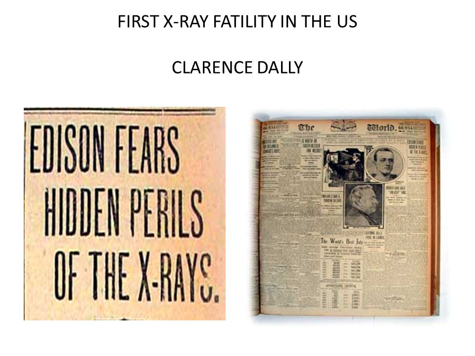 FIRST X-RAY FATILITY IN THE US CLARENCE DALLY