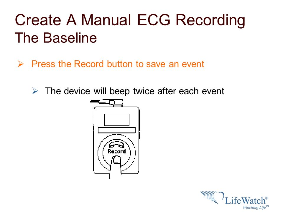 Automatic event recording The device may be programmed to automatically store a heart rhythm If the auto recorded event alert is programmed on, an alarm will sound when the device automatically records an event.