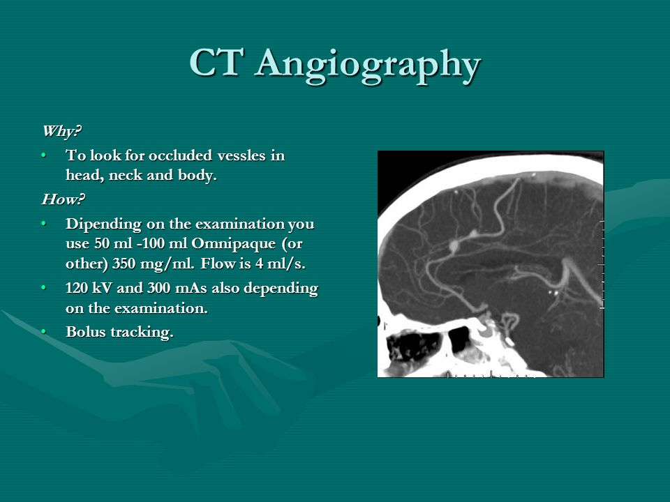CT Angiography Why? To look for occluded vessles in head, neck and body.To look for occluded vessles in head, neck and body.How? Dipending on the exam