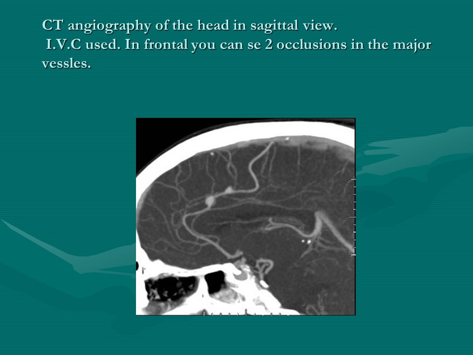 CT angiography of the head in sagittal view. I.V.C used. In frontal you can se 2 occlusions in the major vessles.