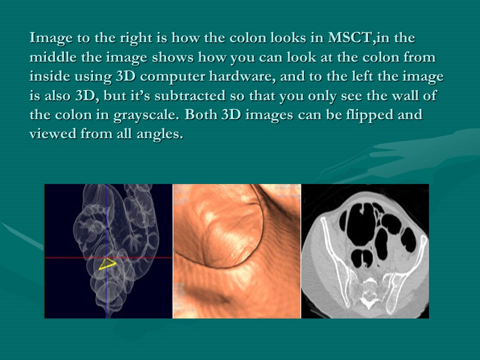 Image to the right is how the colon looks in MSCT,in the middle the image shows how you can look at the colon from inside using 3D computer hardware,