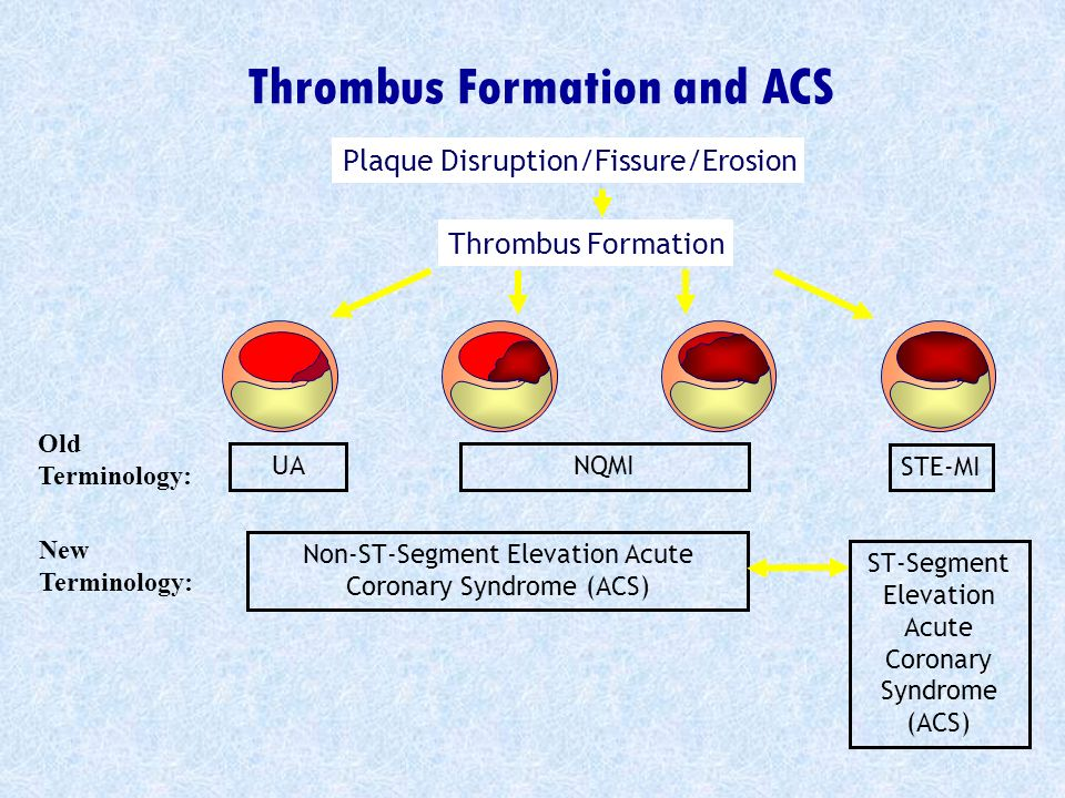 Thrombus Formation and ACS UANQMI STE-MI Plaque Disruption/Fissure/Erosion Thrombus Formation Non-ST-Segment Elevation Acute Coronary Syndrome (ACS) S