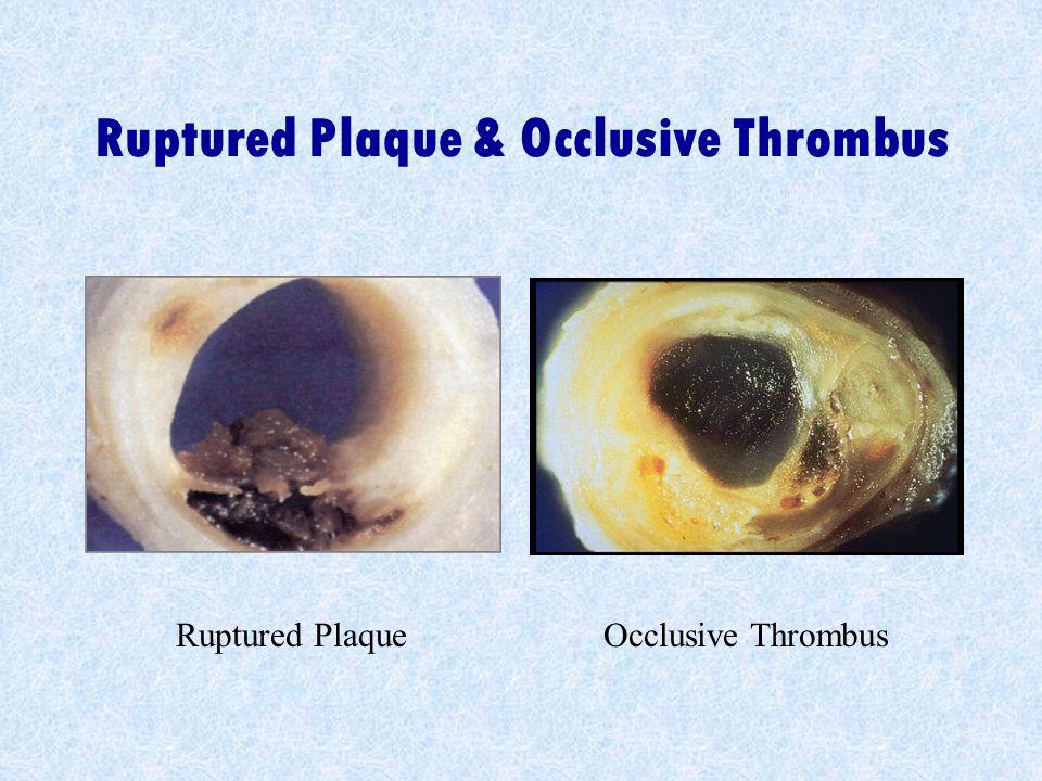 Ruptured Plaque & Occlusive Thrombus Ruptured PlaqueOcclusive Thrombus