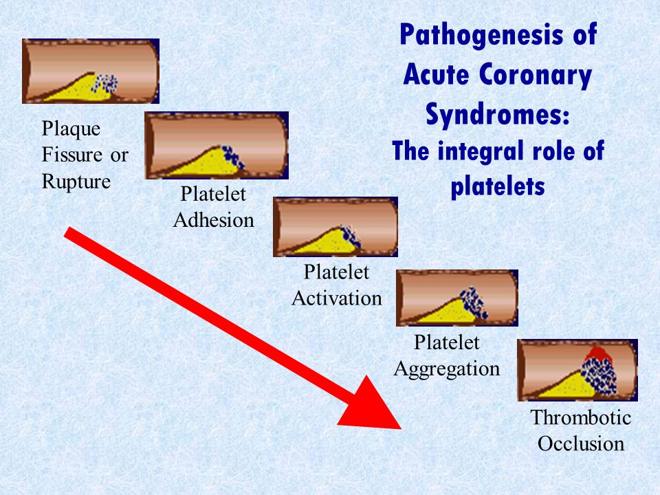 Pathogenesis of Acute Coronary Syndromes: The integral role of platelets Plaque Fissure or Rupture Platelet Aggregation Platelet Activation Platelet A