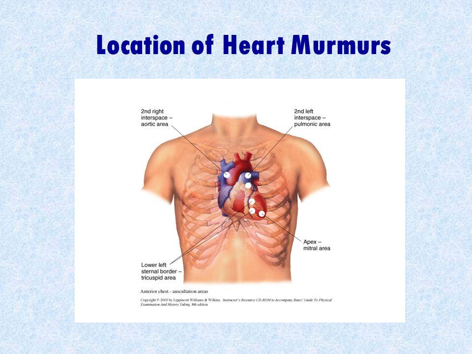 Location of Heart Murmurs
