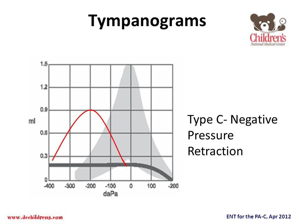 ENT for the PA-C, Apr 2012 Tympanograms Type C- Negative Pressure Retraction