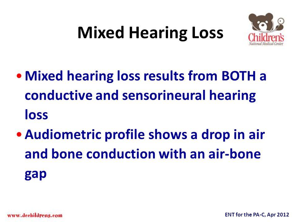ENT for the PA-C, Apr 2012 Mixed Hearing Loss Mixed hearing loss results from BOTH a conductive and sensorineural hearing loss Audiometric profile sho