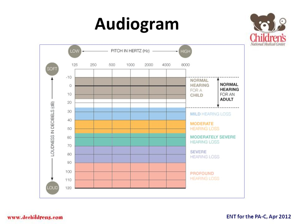 ENT for the PA-C, Apr 2012 Audiogram