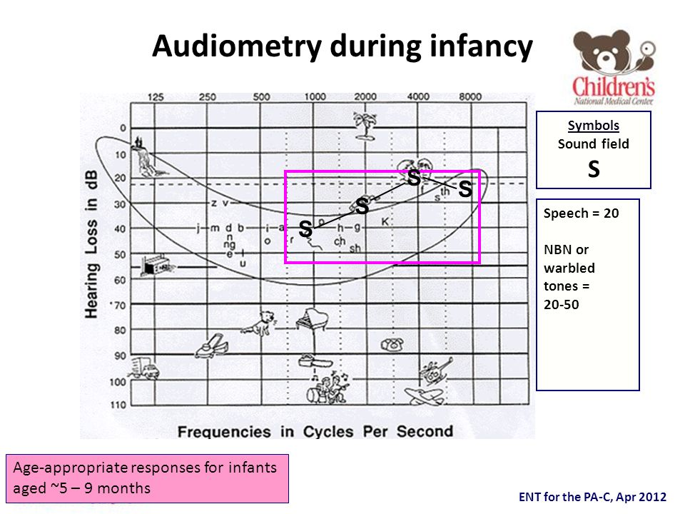 ENT for the PA-C, Apr 2012 Audiometry during infancy S S S S Age-appropriate responses for infants aged ~5 – 9 months Speech = 20 NBN or warbled tones