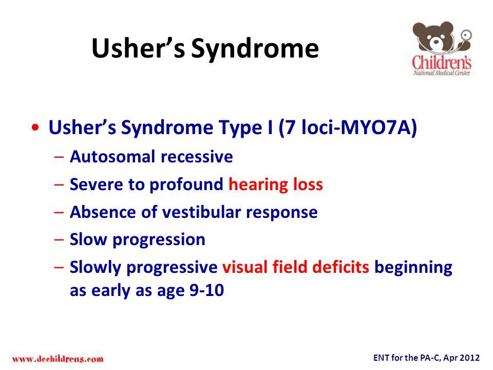 Ushers Syndrome Ushers Syndrome Type I (7 loci-MYO7A) –Autosomal recessive –Severe to profound hearing loss –Absence of vestibular response –Slow prog