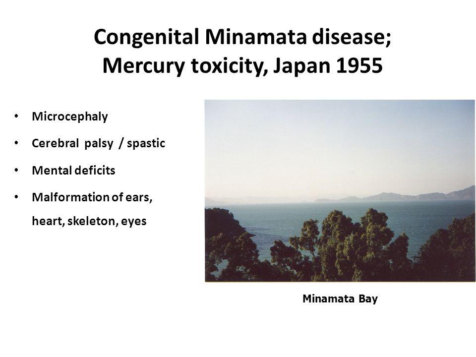 Four Major Pollution di Jepang CaseAccusedRuling Minamata Disease (organic mercury in sea water) Chisso Corp.Plaintiff wins in 1973 Itai-itai Disease
