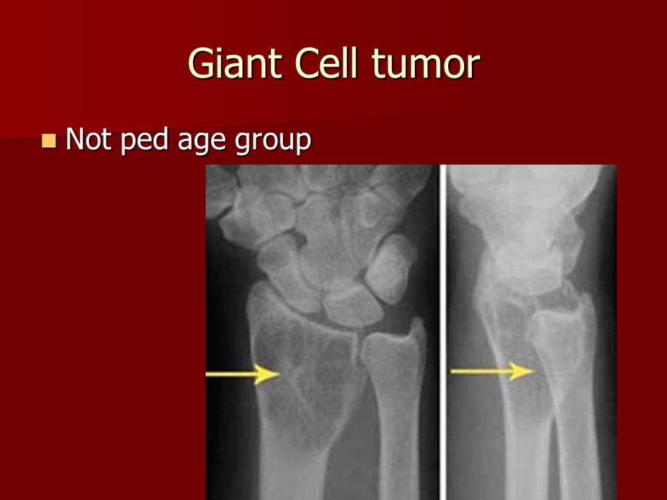 Giant Cell tumor Not ped age group Not ped age group