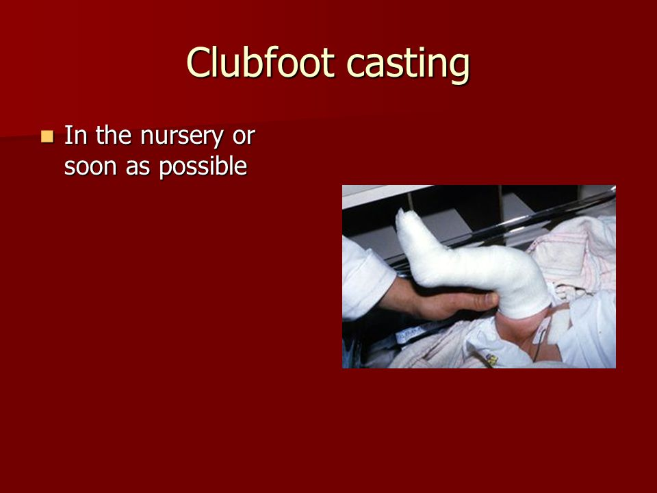 Clubfoot casting In the nursery or soon as possible In the nursery or soon as possible