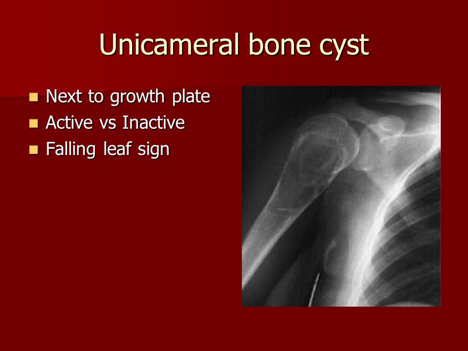 Unicameral bone cyst Next to growth plate Next to growth plate Active vs Inactive Active vs Inactive Falling leaf sign Falling leaf sign