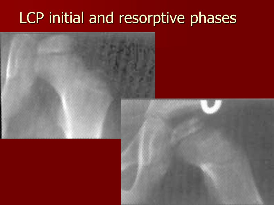 LCP initial and resorptive phases