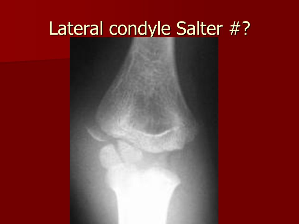 Lateral condyle Salter #?