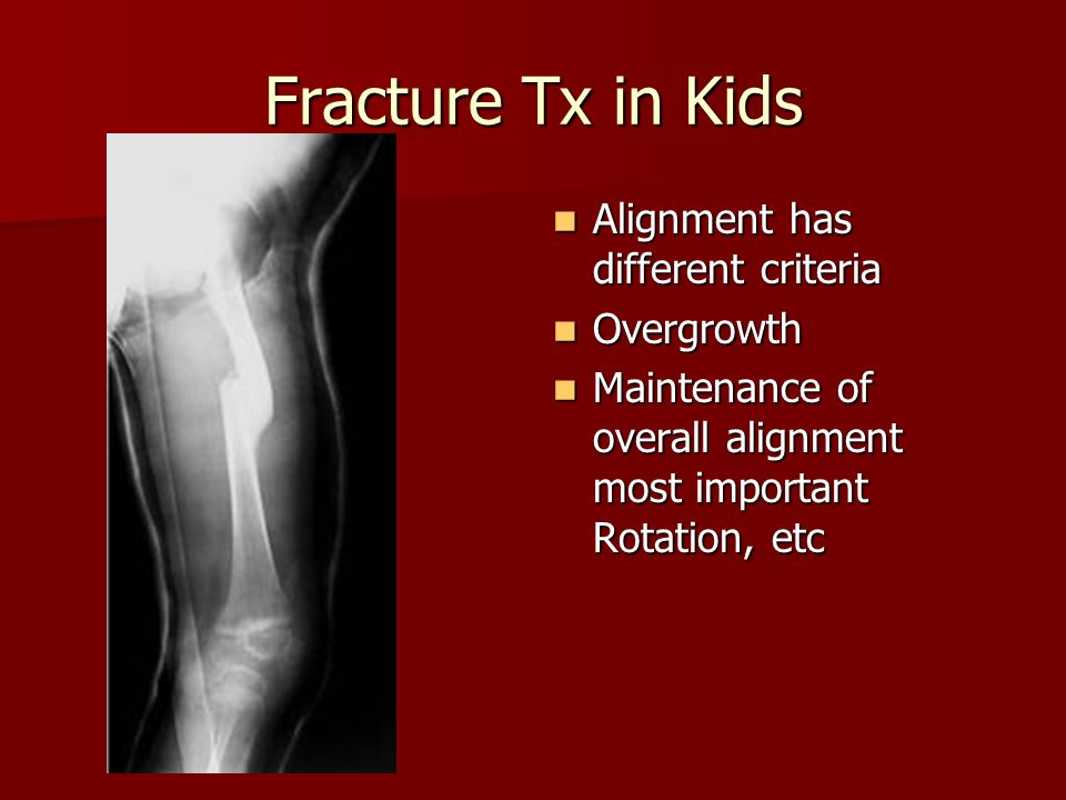 Fracture Tx in Kids Alignment has different criteria Alignment has different criteria Overgrowth Overgrowth Maintenance of overall alignment most impo