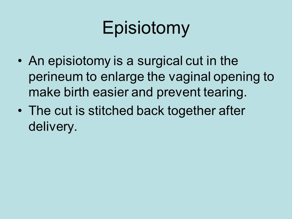 Episiotomy An episiotomy is a surgical cut in the perineum to enlarge the vaginal opening to make birth easier and prevent tearing. The cut is stitche