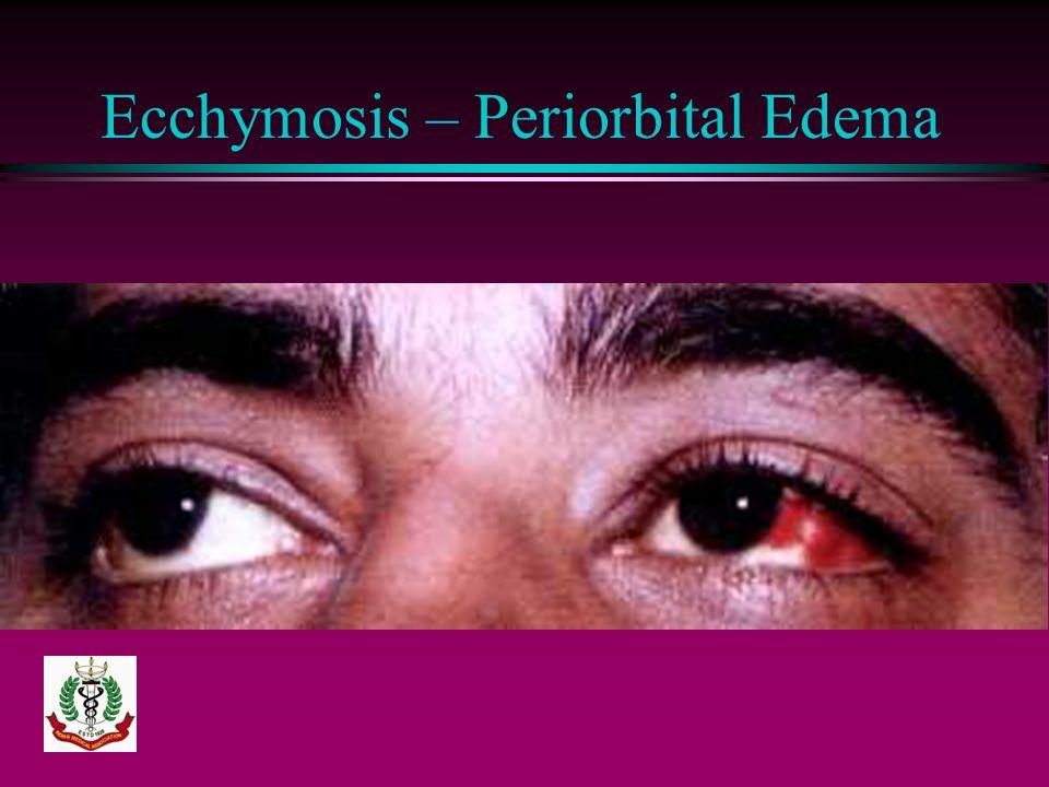 Ecchymosis – Periorbital Edema