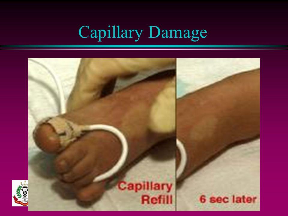 Capillary Damage