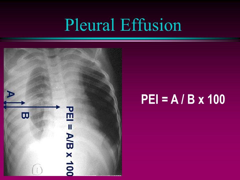 PEI = A / B x 100 Pleural Effusion